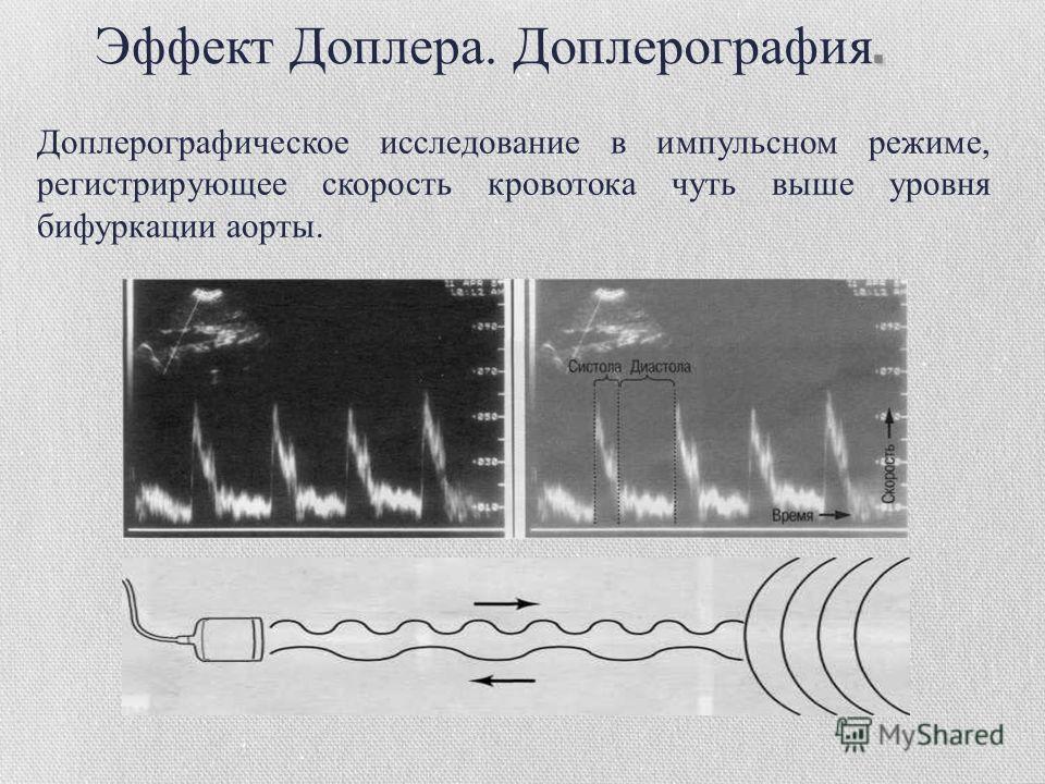 Доплерографическое исследование в импульсном режиме, регистрирующее скорость кровотока чуть выше уровня бифуркации аорты.