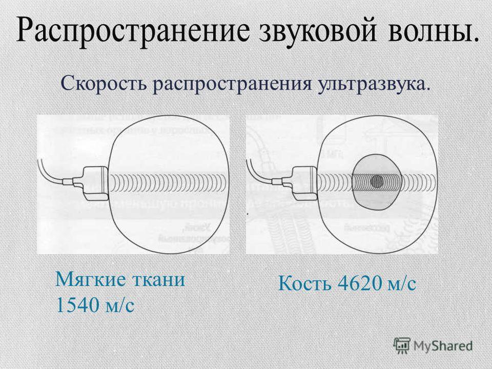 Мягкие ткани 1540 м/с Кость 4620 м/с Скорость распространения ультразвука.