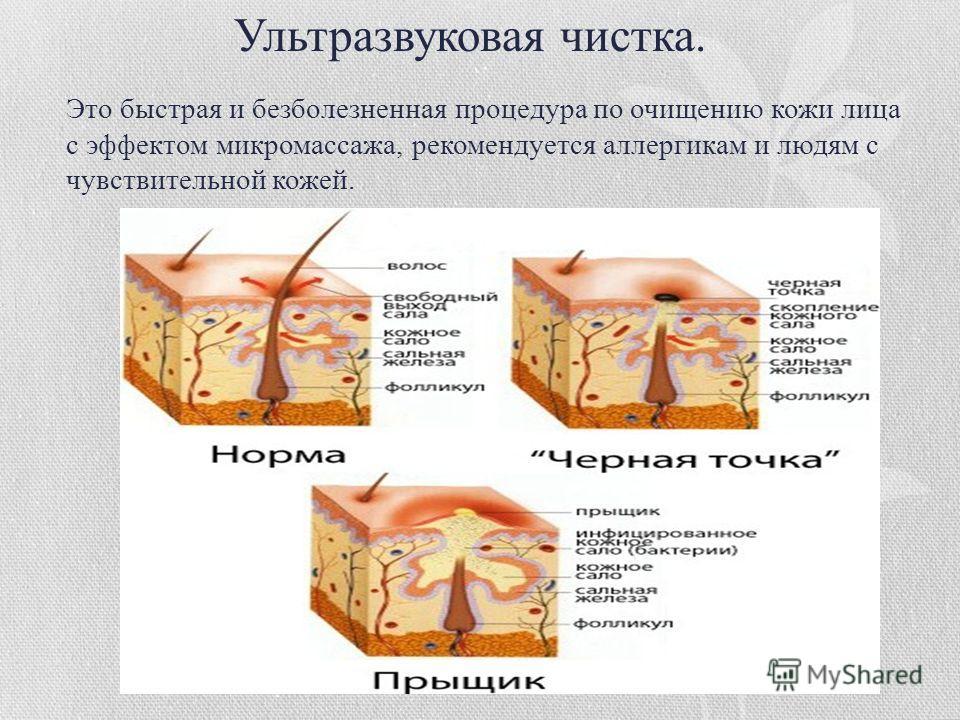 Это быстрая и безболезненная процедура по очищению кожи лица с эффектом микромассажа, рекомендуется аллергикам и людям с чувствительной кожей. Ультразвуковая чистка.