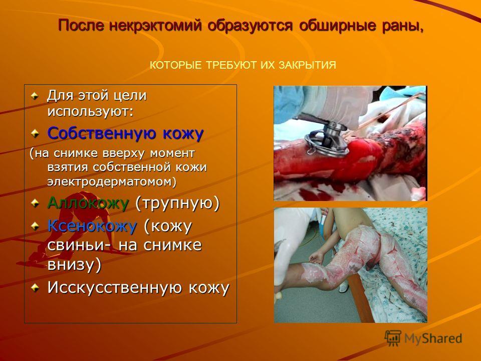 После некрэктомий образуются обширные раны, После некрэктомий образуются обширные раны, КОТОРЫЕ ТРЕБУЮТ ИХ ЗАКРЫТИЯ Для этой цели используют: Собственную кожу (на снимке вверху момент взятия собственной кожи электродерматомом ) Аллокожу (трупную) Ксе