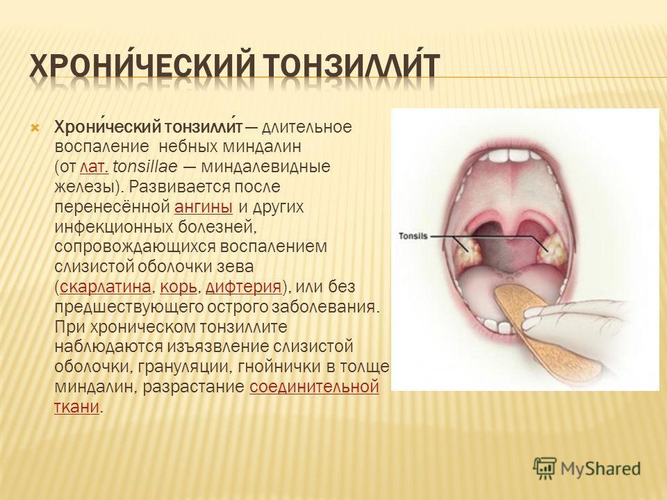 Хронический тонзиллит длительное воспаление небных миндалин (от лат. tonsillae миндалевидные железы). Развивается после перенесённой ангины и других инфекционных болезней, сопровождающихся воспалением слизистой оболочки зева (скарлатина, корь, дифтер