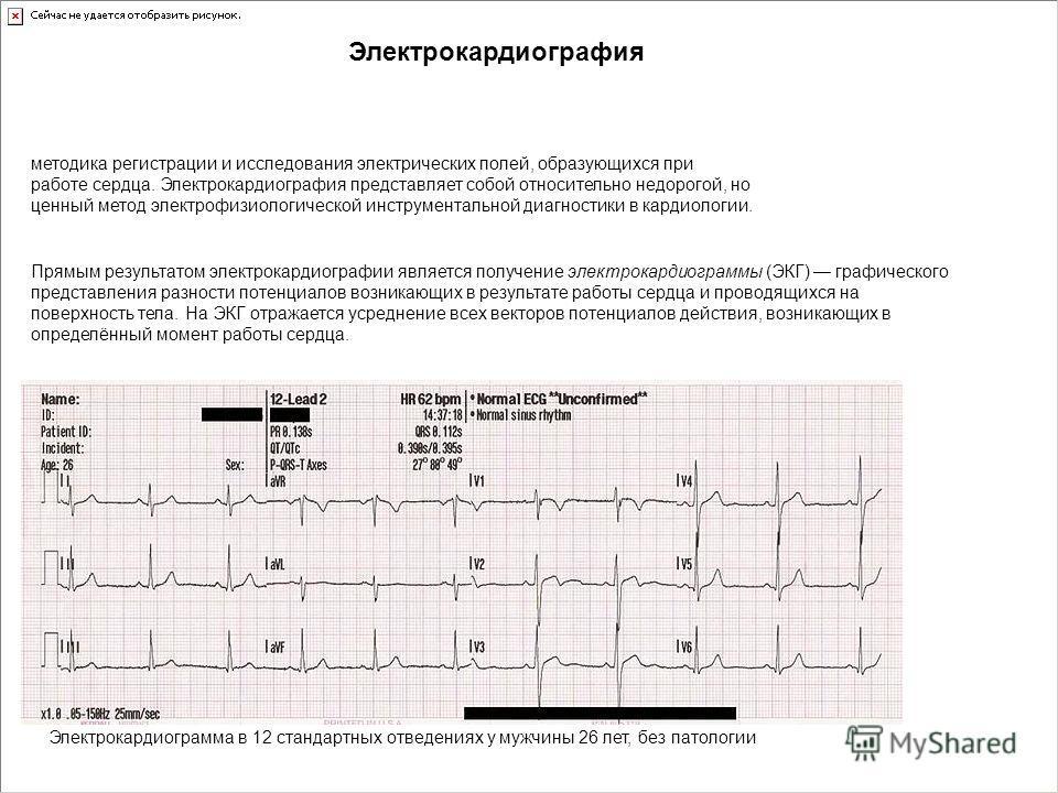 методика регистрации и исследования электрических полей, образующихся при работе сердца. Электрокардиография представляет собой относительно недорогой, но ценный метод электрофизиологической инструментальной диагностики в кардиологии. Электрокардиогр