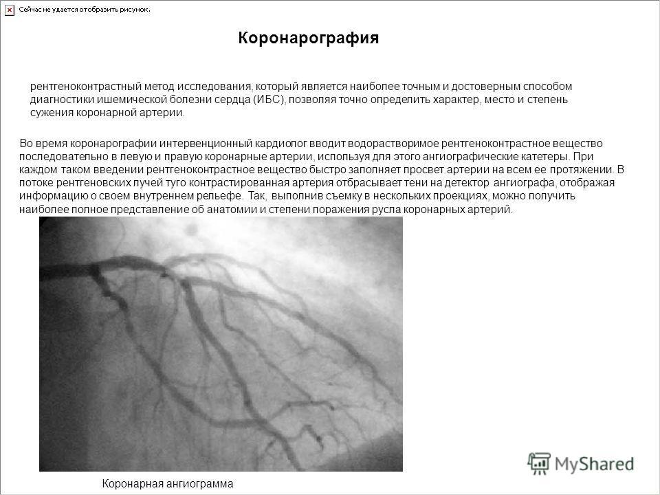 рентгеноконтрастный метод исследования, который является наиболее точным и достоверным способом диагностики ишемической болезни сердца (ИБС), позволяя точно определить характер, место и степень сужения коронарной артерии. Коронарография Во время коро