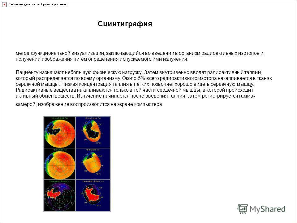 метод функциональной визуализации, заключающийся во введении в организм радиоактивных изотопов и получении изображения путём определения испускаемого ими излучения. Сцинтиграфия Пациенту назначают небольшую физическую нагрузку. Затем внутривенно ввод