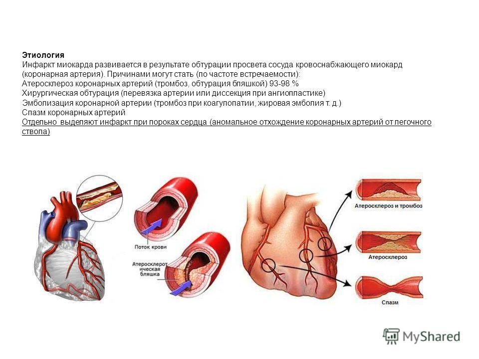 Этиология Инфаркт миокарда развивается в результате обтурации просвета сосуда кровоснабжающего миокард (коронарная артерия). Причинами могут стать (по частоте встречаемости): Атеросклероз коронарных артерий (тромбоз, обтурация бляшкой) 93-98 % Хирург