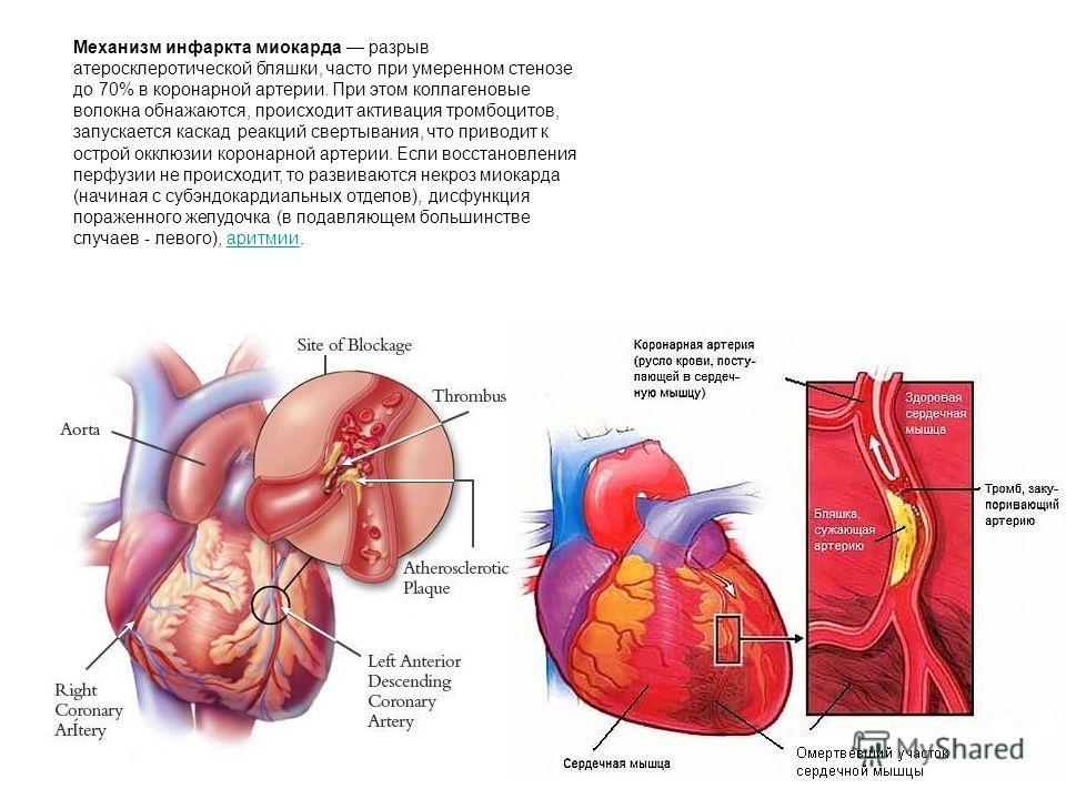 Механизм инфаркта миокарда разрыв атеросклеротической бляшки, часто при умеренном стенозе до 70% в коронарной артерии. При этом коллагеновые волокна обнажаются, происходит активация тромбоцитов, запускается каскад реакций свертывания, что приводит к