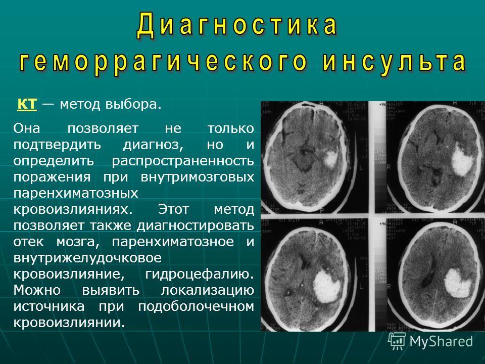 КТ метод выбора. Она позволяет не только подтвердить диагноз, но и определить распространенность поражения при внутримозговых паренхиматозных кровоизлияниях. Этот метод позволяет также диагностировать отек мозга, паренхиматозное и внутрижелудочковое