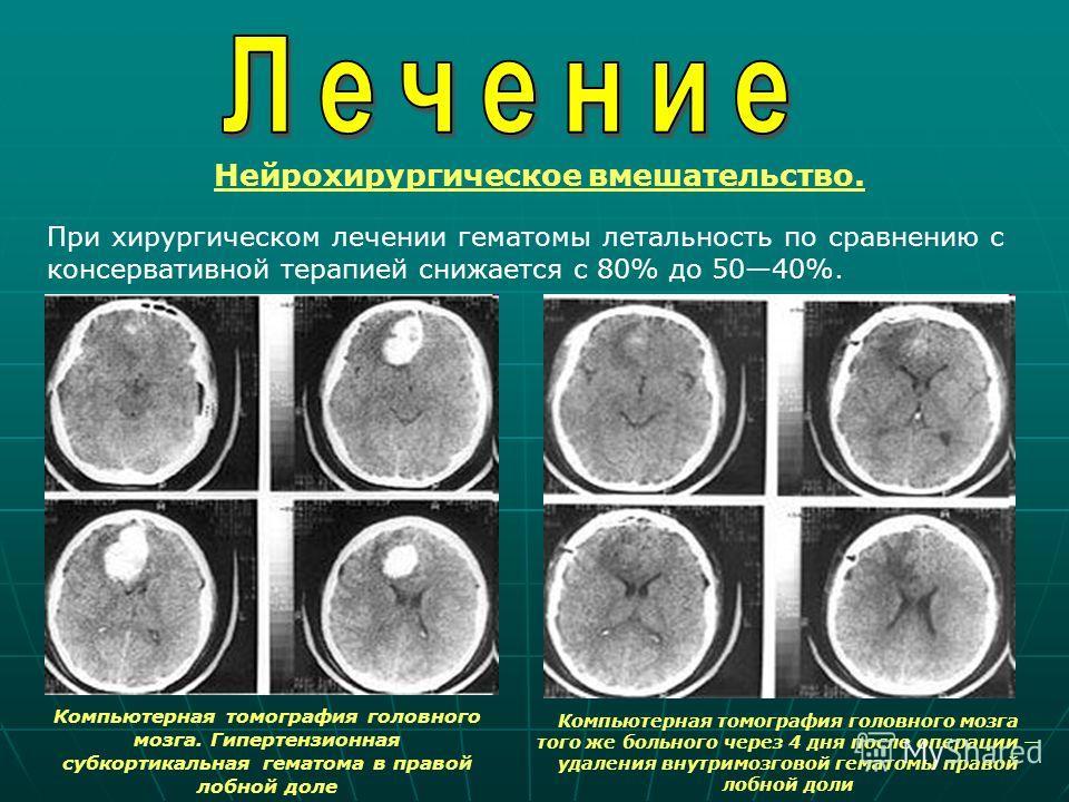 Нейрохирургическое вмешательство. При хирургическом лечении гематомы летальность по сравнению с консервативной терапией снижается с 80% до 5040%. Компьютерная томография головного мозга. Гипертензионная субкортикальная гематома в правой лобной доле К
