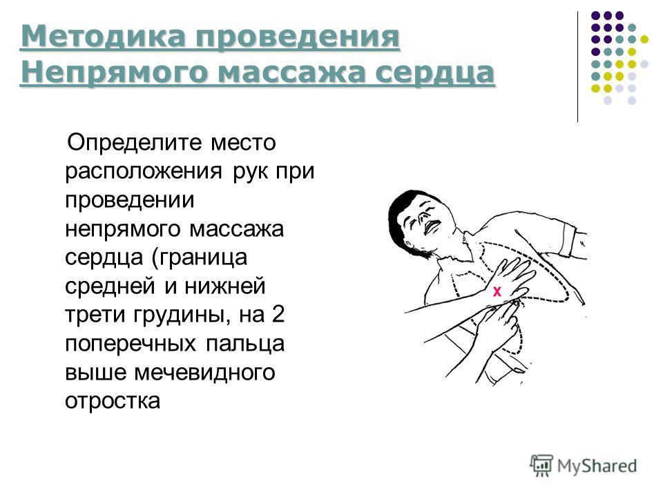 Определите место расположения рук при проведении непрямого массажа сердца (граница средней и нижней трети грудины, на 2 поперечных пальца выше мечевидного отростка Методика проведения Непрямого массажа сердца