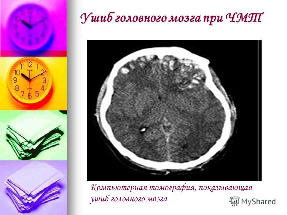Ушиб головного мозга при ЧМТ Компьютерная томография, показывающая ушиб головного мозга