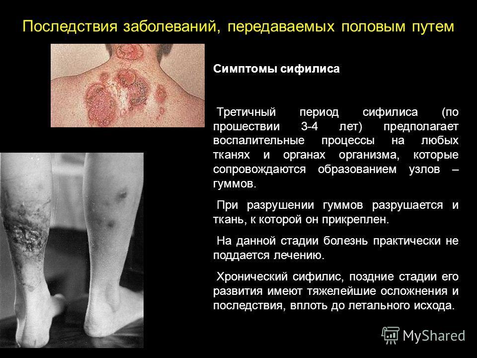 Симптомы сифилиса Третичный период сифилиса (по прошествии 3-4 лет) предполагает воспалительные процессы на любых тканях и органах организма, которые сопровождаются образованием узлов – гуммов. При разрушении гуммов разрушается и ткань, к которой он