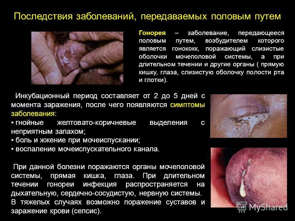 Последствия заболеваний, передаваемых половым путем Инкубационный период составляет от 2 до 5 дней с момента заражения, после чего появляются симптомы заболевания: гнойные желтовато-коричневые выделения с неприятным запахом; боль и жжение при мочеисп