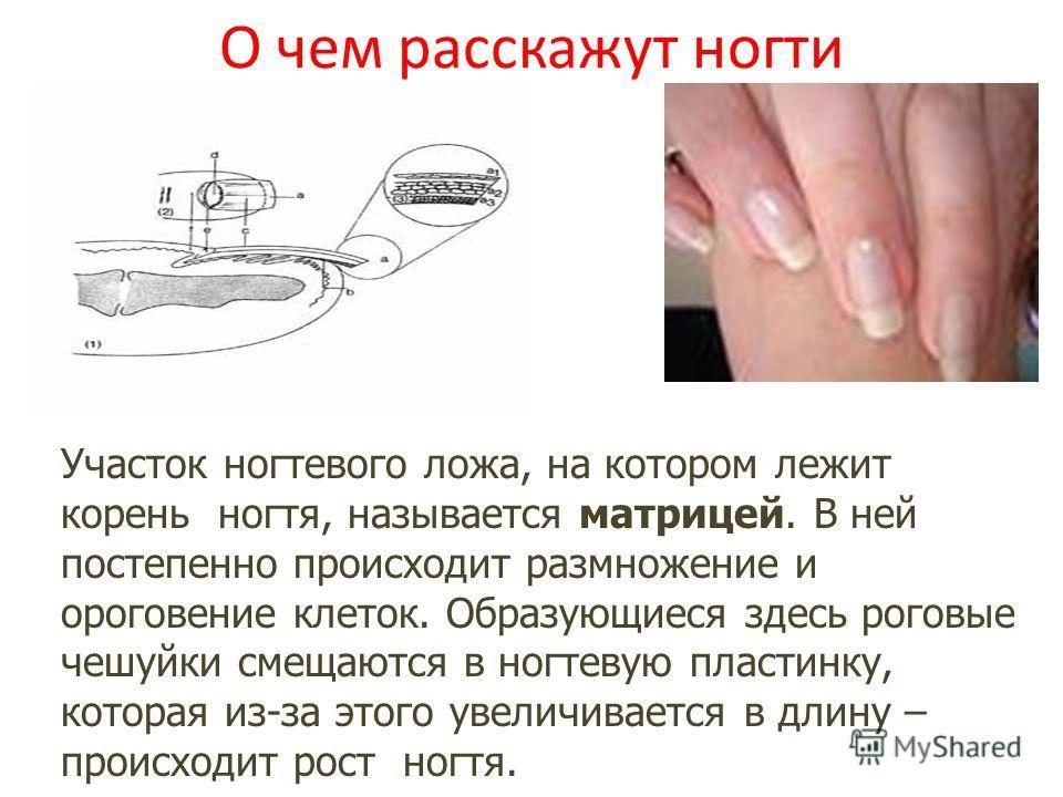 О чем расскажут ногти Участок ногтевого ложа, на котором лежит корень ногтя, называется матрицей. В ней постепенно происходит размножение и ороговение клеток. Образующиеся здесь роговые чешуйки смещаются в ногтевую пластинку, которая из-за этого увел