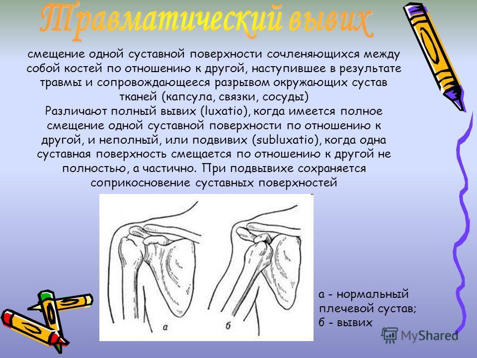 смещение одной суставной поверхности сочленяющихся между собой костей по отношению к другой, наступившее в результате травмы и сопровождающееся разрывом окружающих сустав тканей (капсула, связки, сосуды) Различают полный вывих (luxatio), когда имеетс