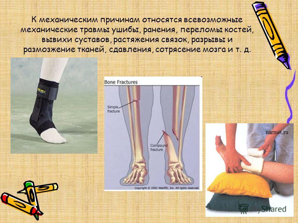 К механическим причинам относятся всевозможные механические травмы ушибы, ранения, переломы костей, вывихи суставов, растяжения связок, разрывы и размозжение тканей, сдавления, сотрясение мозга и т. д.