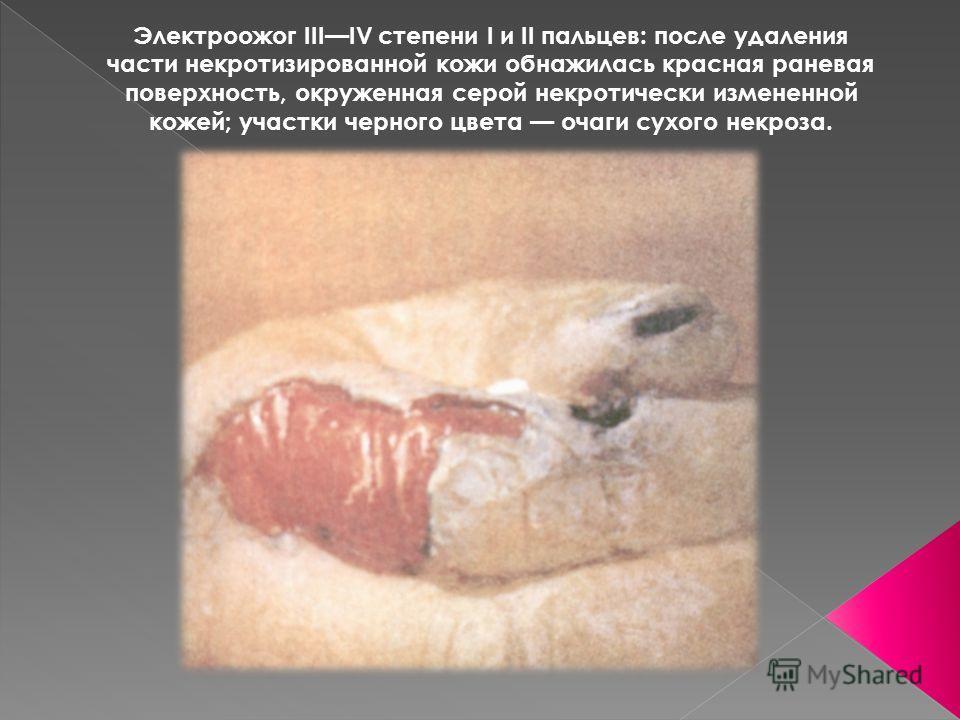 Электроожог IIIIV степени I и II пальцев: после удаления части некротизированной кожи обнажилась красная раневая поверхность, окруженная серой некротически измененной кожей; участки черного цвета очаги сухого некроза.
