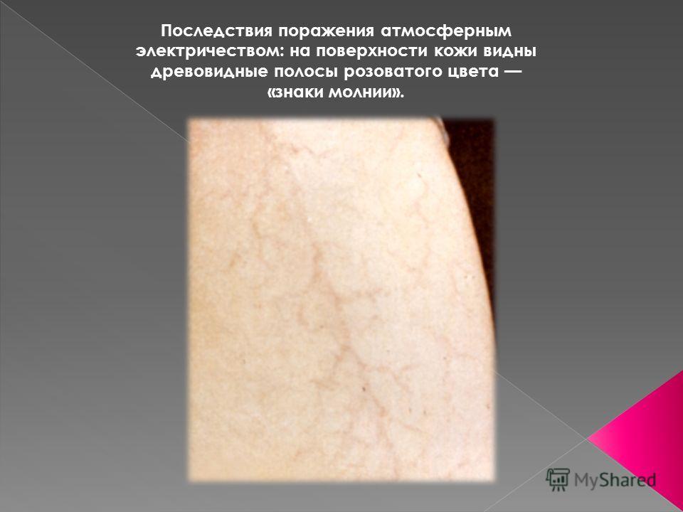 Последствия поражения атмосферным электричеством: на поверхности кожи видны древовидные полосы розоватого цвета «знаки молнии».