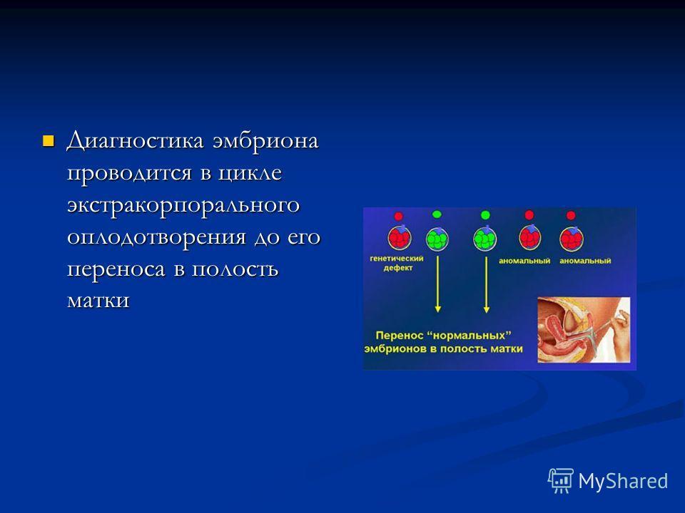 Диагностика эмбриона проводится в цикле экстракорпорального оплодотворения до его переноса в полость матки Диагностика эмбриона проводится в цикле экстракорпорального оплодотворения до его переноса в полость матки