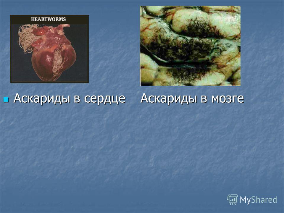 Аскариды в сердце Аскариды в мозге Аскариды в сердце Аскариды в мозге