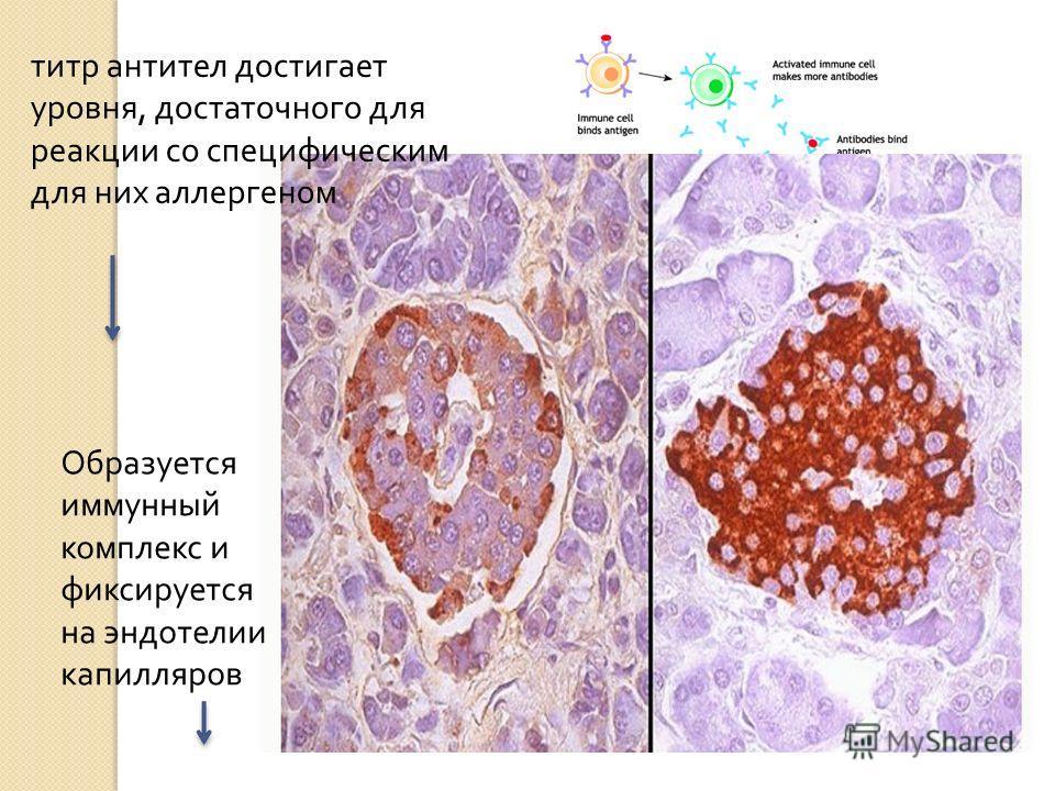 титр антител достигает уровня, достаточного для реакции со специфическим для них аллергеном Образуется иммунный комплекс и фиксируется на эндотелии капилляров