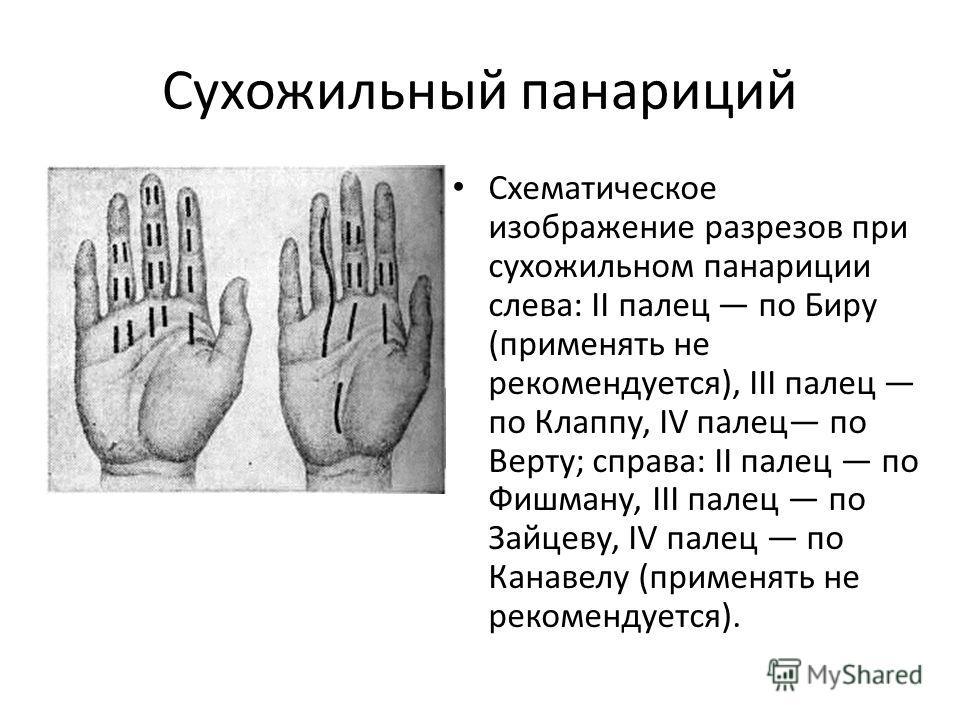 Схематическое изображение разрезов при сухожильном панариции слева: II палец по Биру (применять не рекомендуется), III палец по Клаппу, IV палец по Верту; справа: II палец по Фишману, III палец по Зайцеву, IV палец по Канавелу (применять не рекоменду