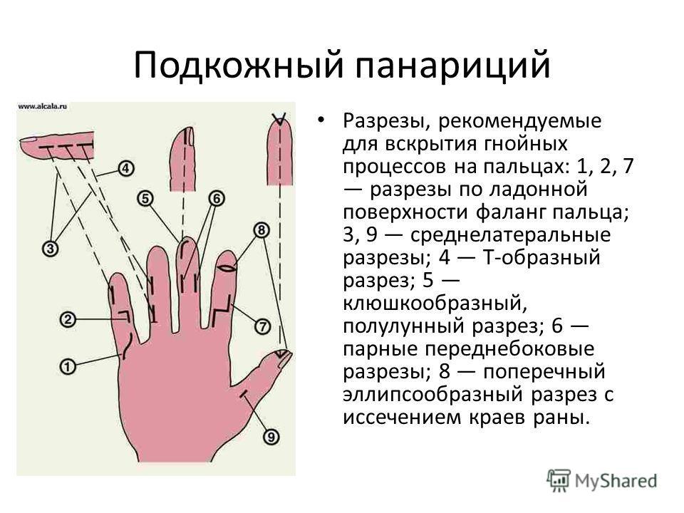 Подкожный панариций Разрезы, рекомендуемые для вскрытия гнойных процессов на пальцах: 1, 2, 7 разрезы по ладонной поверхности фаланг пальца; 3, 9 среднелатеральные разрезы; 4 Т-образный разрез; 5 клюшкообразный, полулунный разрез; 6 парные переднебок