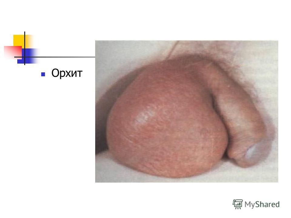 орхио- фото