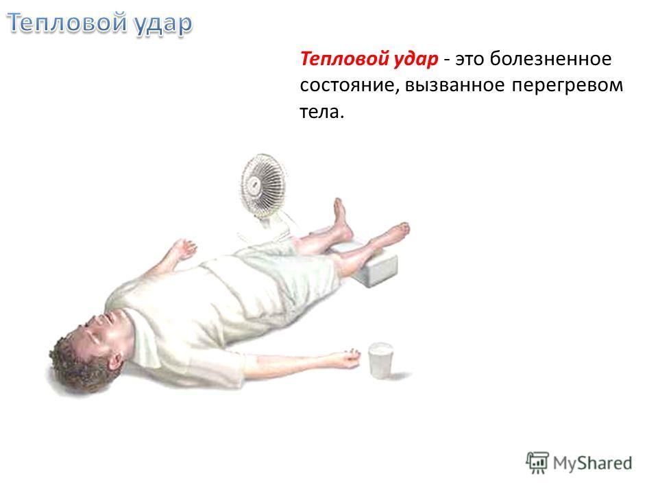 Тепловой удар - это болезненное состояние, вызванное перегревом тела.