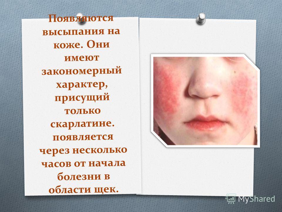 Появляются высыпания на коже. Они имеют закономерный характер, присущий только скарлатине. появляется через несколько часов от начала болезни в области щек.