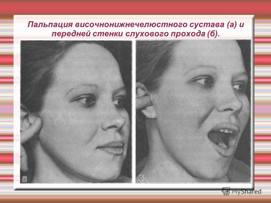 Пальпация височнонижнечелюстного сустава (а) и передней стенки слухового прохода (б).