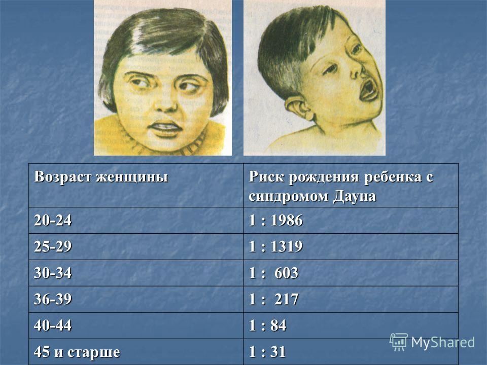 Возраст женщины Риск рождения ребенка с синдромом Дауна 20-24 1 : 1986 25-29 1 : 1319 30-34 1 : 603 36-39 1 : 217 40-44 1 : 84 45 и старше 1 : 31
