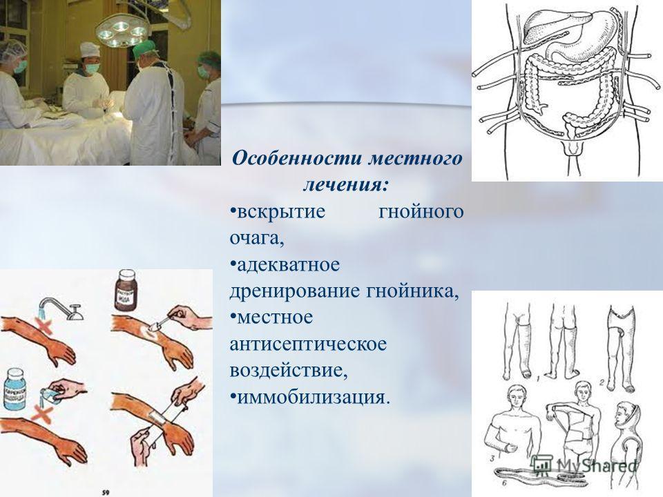 Особенности местного лечения: вскрытие гнойного очага, адекватное дренирование гнойника, местное антисептическое воздействие, иммобилизация.