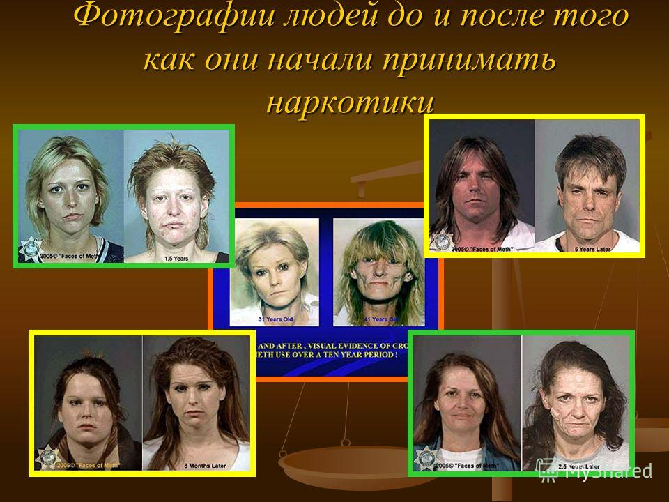 Фотографии людей до и после того как они начали принимать наркотики
