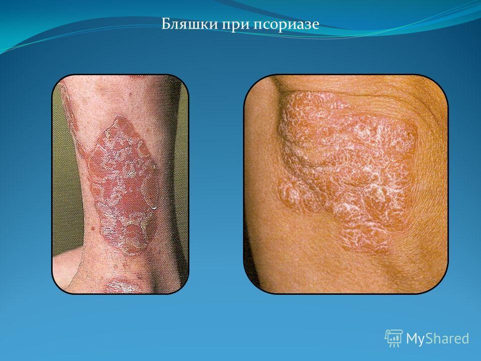 shelushenie-blyashek-pri-psoriaze