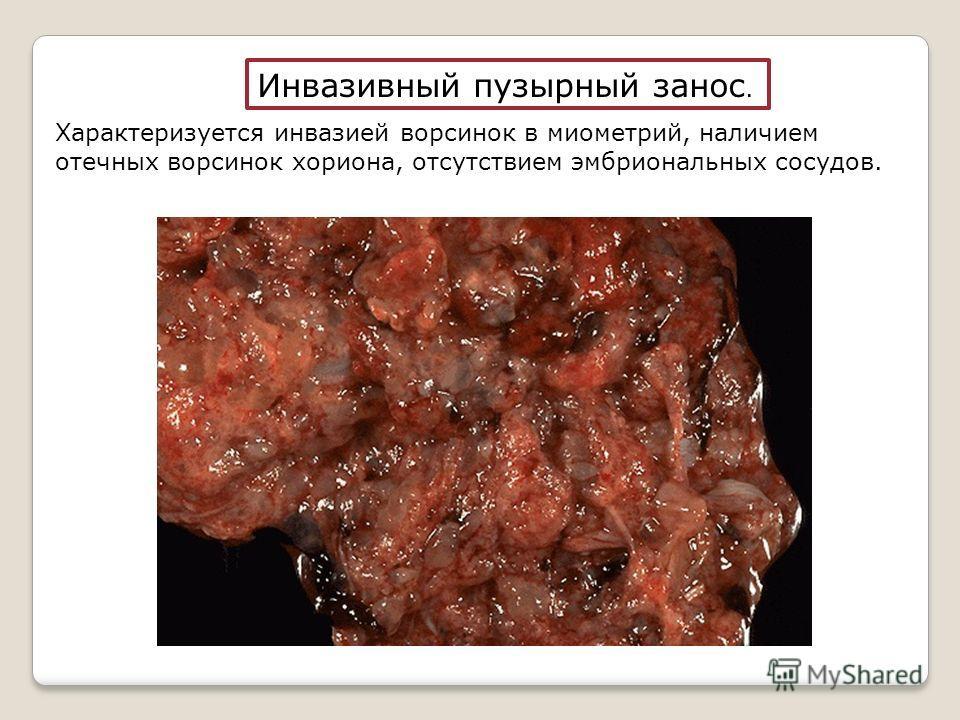 Инвазивный пузырный занос. Характеризуется инвазией ворсинок в миометрий, наличием отечных ворсинок хориона, отсутствием эмбриональных сосудов.
