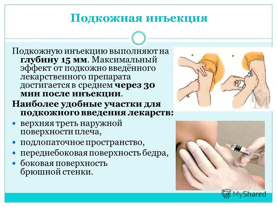 Подкожная инъекция Подкожную инъекцию выполняют на глубину 15 мм. Максимальный эффект от подкожно введённого лекарственного препарата достигается в среднем через 30 мин после инъекции. Наиболее удобные участки для подкожного введения лекарств: верхня