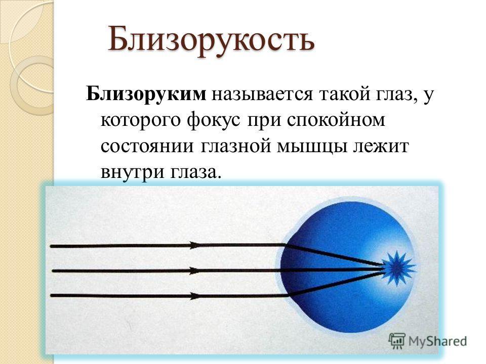 Близорукость Близоруким называется такой глаз, у которого фокус при спокойном состоянии глазной мышцы лежит внутри глаза.
