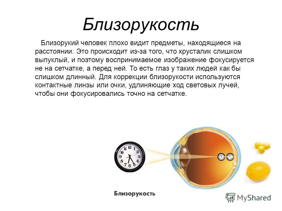 Близорукость Близорукий человек плохо видит предметы, находящиеся на расстоянии. Это происходит из-за того, что хрусталик слишком выпуклый, и поэтому воспринимаемое изображение фокусируется не на сетчатке, а перед ней. То есть глаз у таких людей как