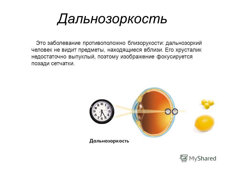 Дальнозоркость Это заболевание противоположно близорукости: дальнозоркий человек не видит предметы, находящиеся вблизи. Его хрусталик недостаточно выпуклый, поэтому изображение фокусируется позади сетчатки.