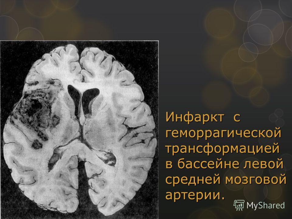 Инфаркт с геморрагической трансформацией в бассейне левой средней мозговой артерии.