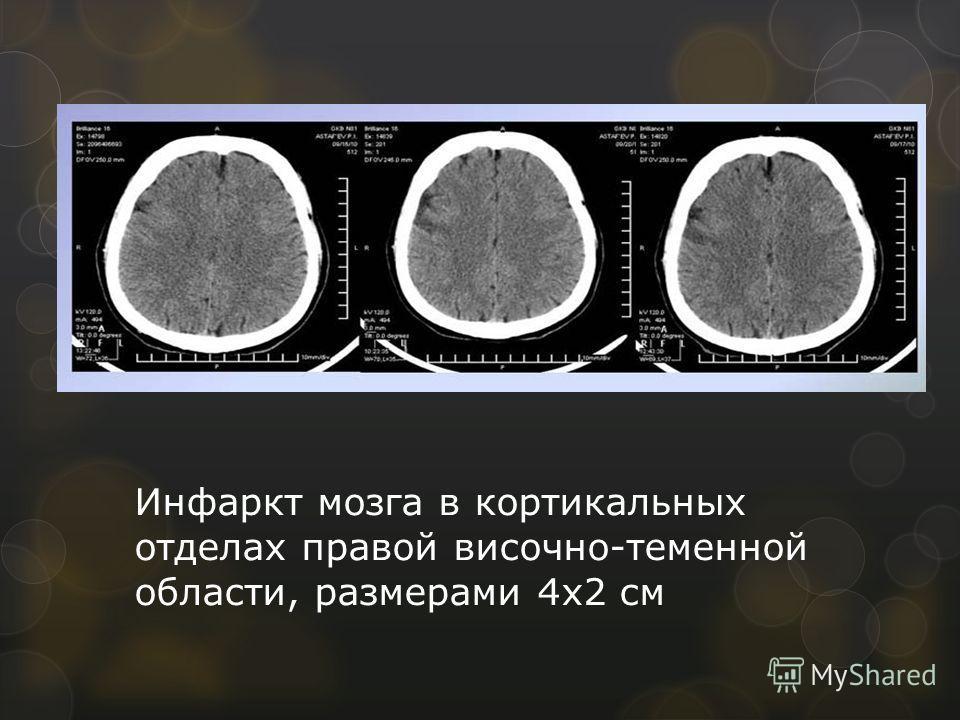 Инфаркт мозга в кортикальных отделах правой височно-теменной области, размерами 4х2 см