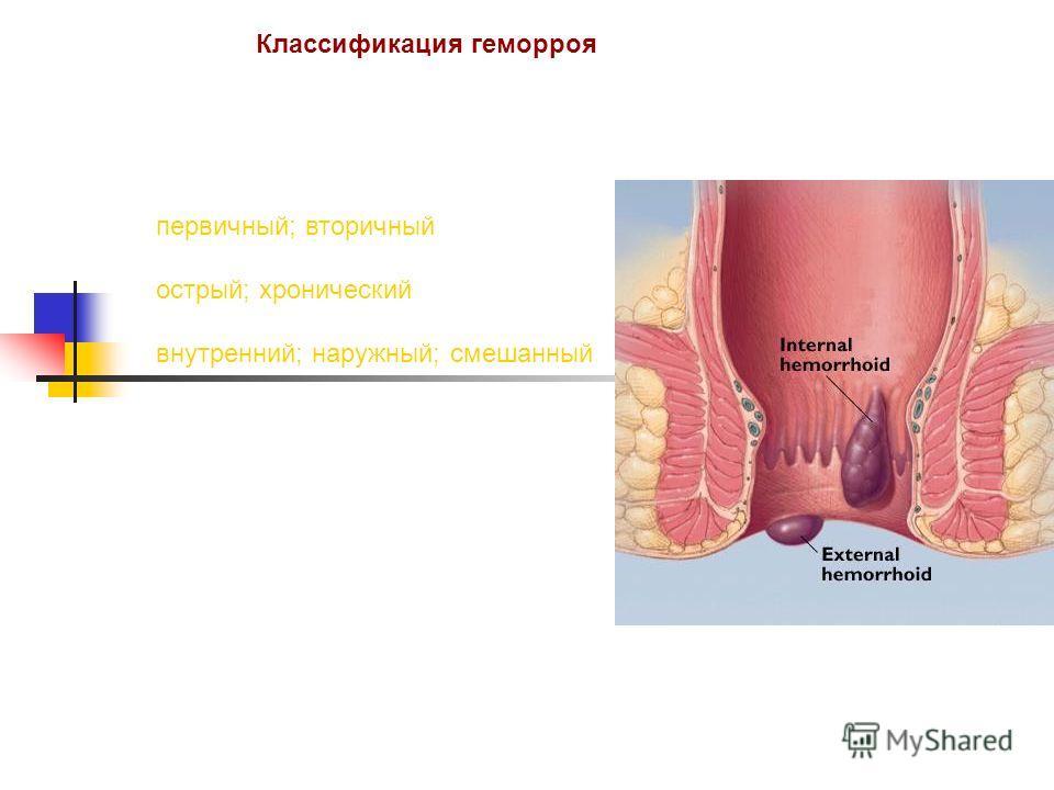 Классификация геморроя первичный; вторичный острый; хронический внутренний; наружный; смешанный