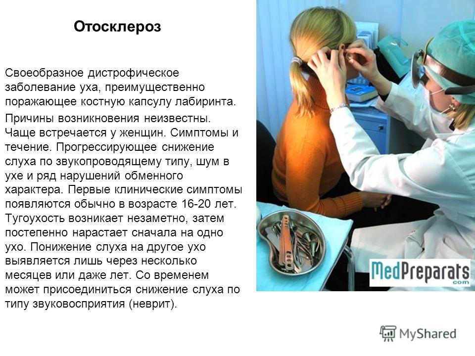 Отосклероз Своеобразное дистрофическое заболевание уха, преимущественно поражающее костную капсулу лабиринта. Причины возникновения неизвестны. Чаще встречается у женщин. Симптомы и течение. Прогрессирующее снижение слуха по звукопроводящему типу, шу