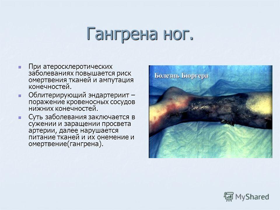 Гангрена ног. При атеросклеротических заболеваниях повышается риск омертвения тканей и ампутация конечностей. При атеросклеротических заболеваниях повышается риск омертвения тканей и ампутация конечностей. Облитерирующий эндартериит – поражение крове