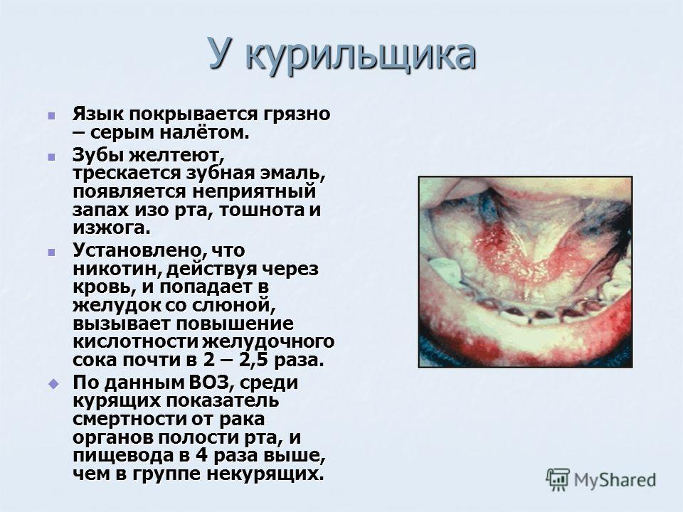 У курильщика Язык покрывается грязно – серым налётом. Язык покрывается грязно – серым налётом. Зубы желтеют, трескается зубная эмаль, появляется неприятный запах изо рта, тошнота и изжога. Зубы желтеют, трескается зубная эмаль, появляется неприятный