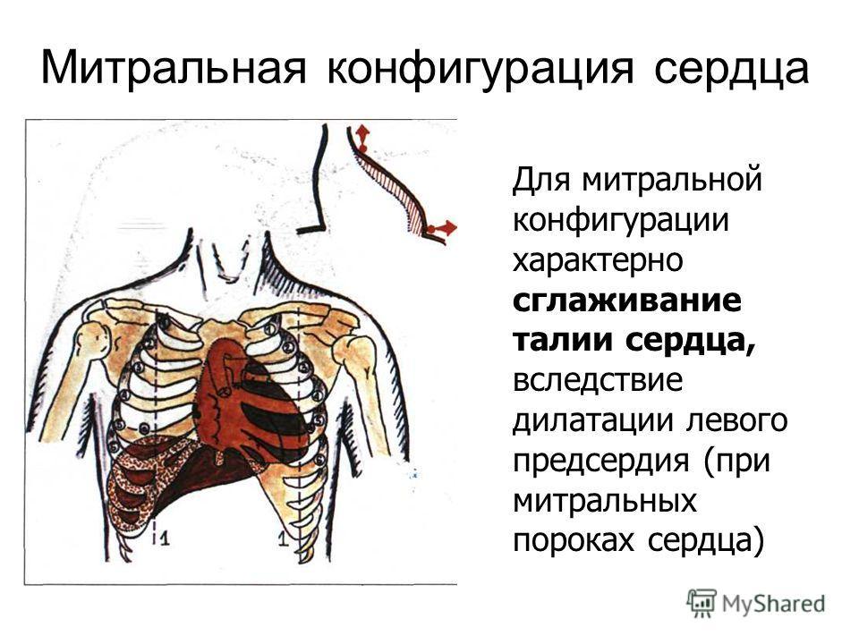 Митральная конфигурация сердца Для митральной конфигурации характерно сглаживание талии сердца, вследствие дилатации левого предсердия (при митральных пороках сердца)