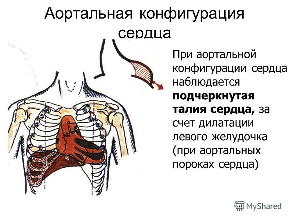 Аортальная конфигурация сердца При аортальной конфигурации сердца наблюдается подчеркнутая талия сердца, за счет дилатации левого желудочка (при аортальных пороках сердца)