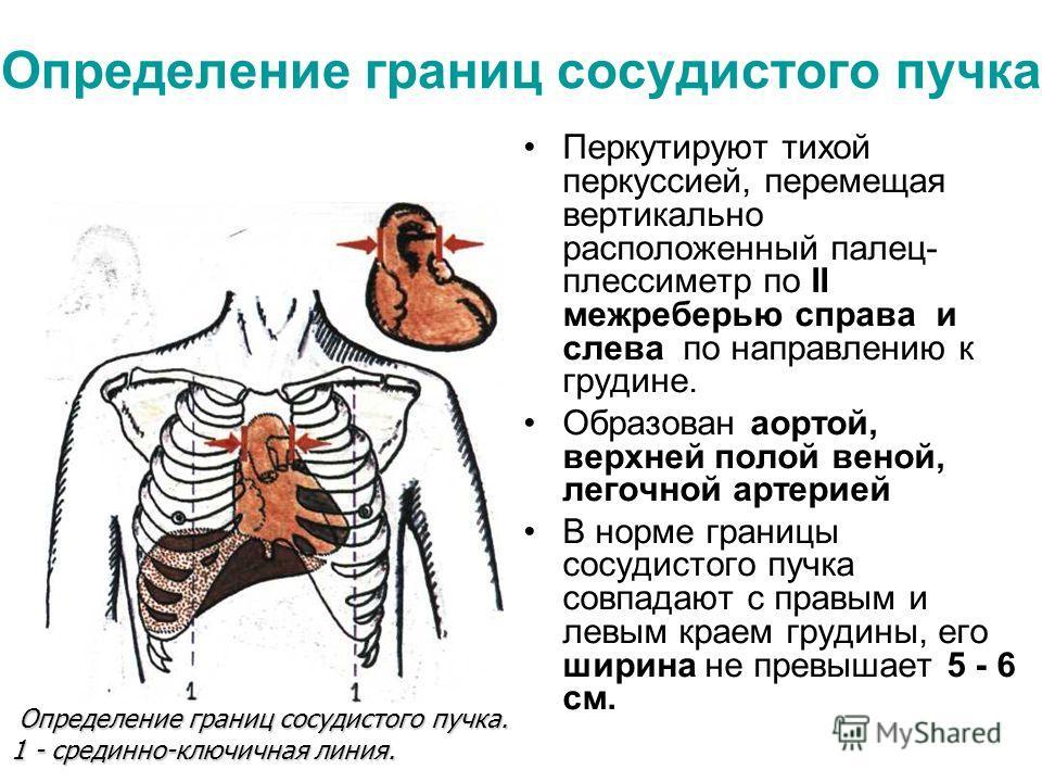 Определение границ сосудистого пучка Перкутируют тихой перкуссией, перемещая вертикально расположенный палец- плессиметр по II межреберью справа и слева по направлению к грудине. Образован аортой, верхней полой веной, легочной артерией В норме границ