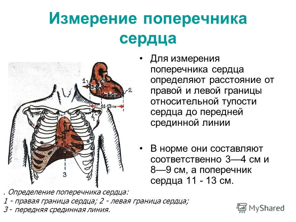 Измерение поперечника сердца Для измерения поперечника сердца определяют расстояние от правой и левой границы относительной тупости сердца до передней срединной линии В норме они составляют соответственно 34 см и 89 см, а поперечник сердца 11 - 13 см