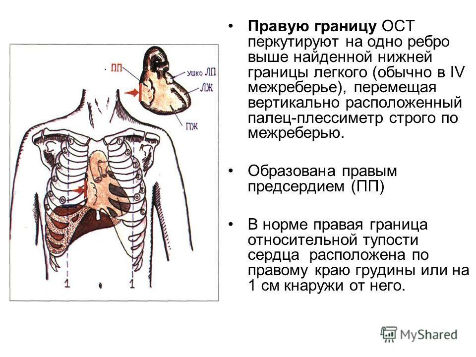 Правую границу ОСТ перкутируют на одно ребро выше найденной нижней границы легкого (обычно в IV межреберье), перемещая вертикально расположенный палец-плессиметр строго по межреберью. Образована правым предсердием (ПП) В норме правая граница относите